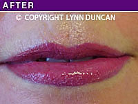 Client #22 - Immediately After Permanent Lips Procedure