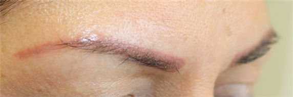 Client #26 - Before Permanent Makeup Eyebrows