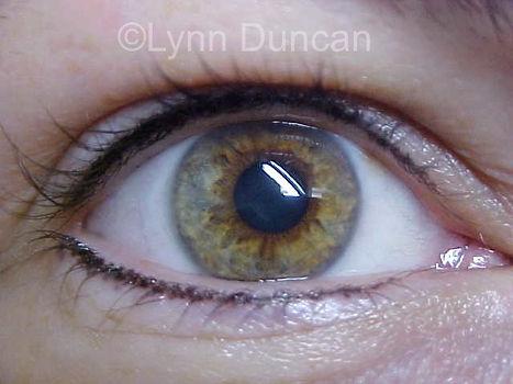 Client #8 - After Permanent Makeup Eyeliner #2