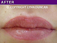 Client #50 - Completed Lips Example #28