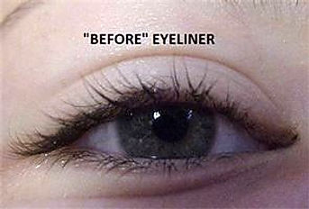 Client #18 - Before Permanent Makeup Eyeliner