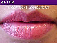 Client #25 - Completed Lips Example #3