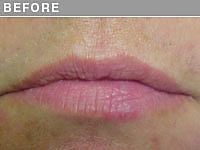 Client #18 - Before Permanent Natural Lip Liner