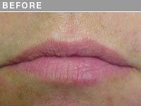 Client #18 - Before Permanent Natural Lip Liner
