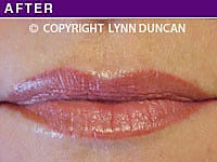 Client #41 - Completed Lips Example #19