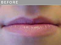 Client #16 - Before Permanent Natural Lip Liner