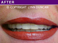 Client #21 - Immediately After Permanent Lips Procedure