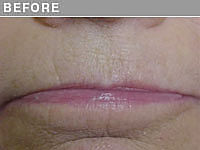 Client #13 - Before Permanent Lips Procedure