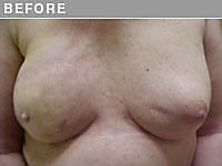 Client #3 - Before Areola Repigmentation