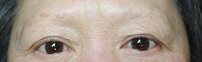 Client #13 - Before Permanent Makeup Eyebrows