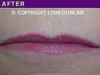 Client #13 - After Permanent Lips Procedure