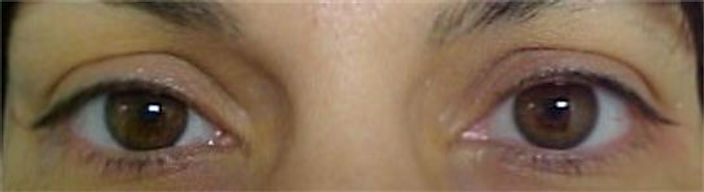 Client #10 - Before Permanent Makeup Eyeliner