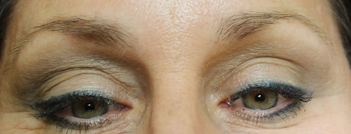 Client #3 - Before Permanent Makeup Eyebrows
