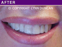 Client #47 - Completed Lips Example #25