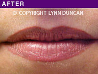 Client #2 - After Permanent Lips Procedure