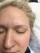 Client #6 - Before Eyebrow Microblading #2