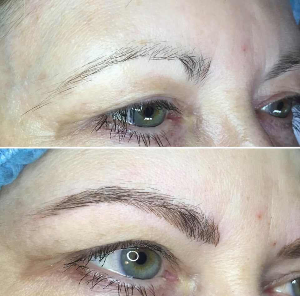 Eyebrows pre & post Microbladed