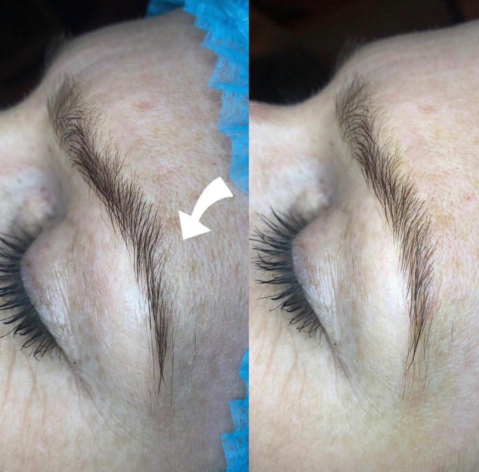 Pre & post Microblading of the eyebrow to correct a scar.