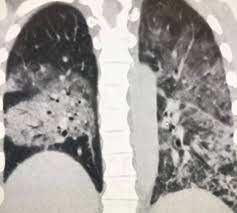 COVID-19 interstitial pneumonia: monitoring the clinical course in survivors