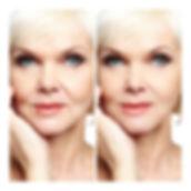 Micro current facial.jpg