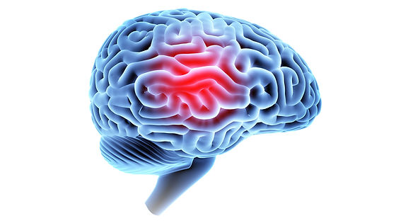 concussions-1200x675.jpg