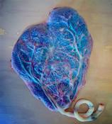 Heart shaped placenta