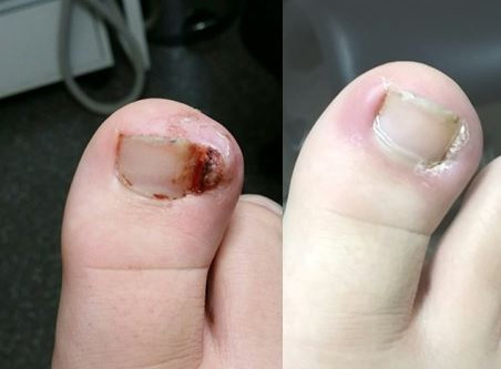 Ingrown toenails and nail surgery- The PNA.