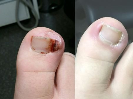 Ingrown toenails and nail surgery- The PNA.