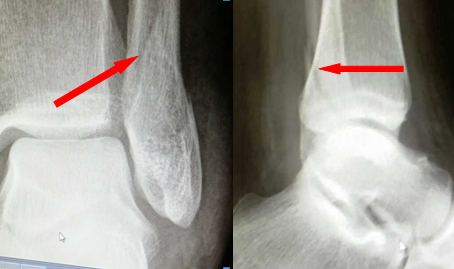 Broken Bones…. How do they heal??