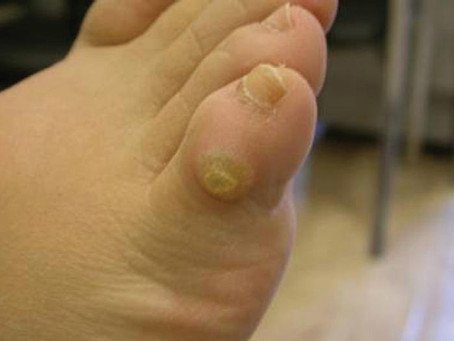 Corns, Calluses and Warts……What's the difference?
