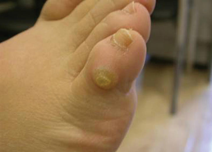 Wart vs foot