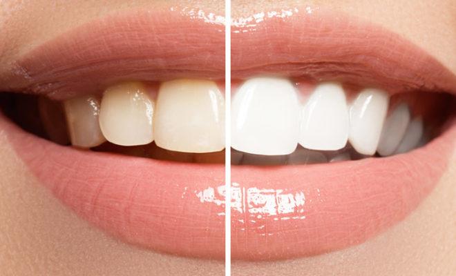 clareamento-dental-660x400