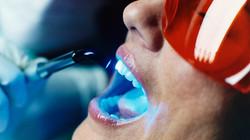 teeth-whitening-las-vegas-preferred-fami