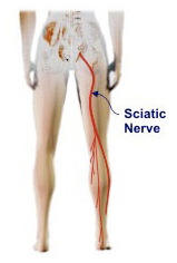 Sciatic pain explained