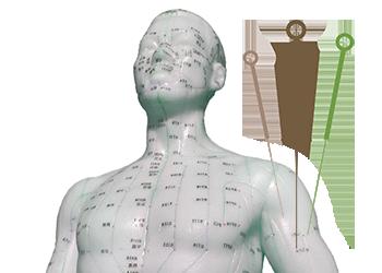 acupuntura-china.png