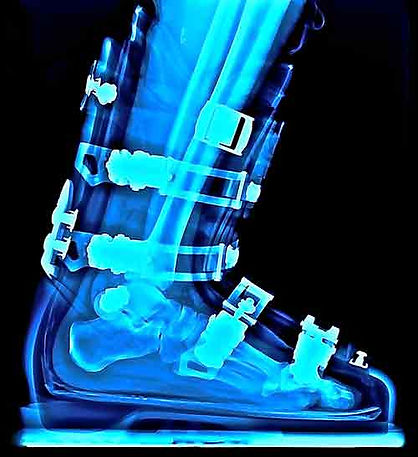 your boots throuh our eyes xray ski boot
