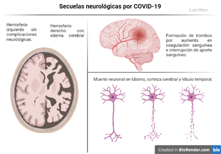 Secuelas neurológicas por COVID-19