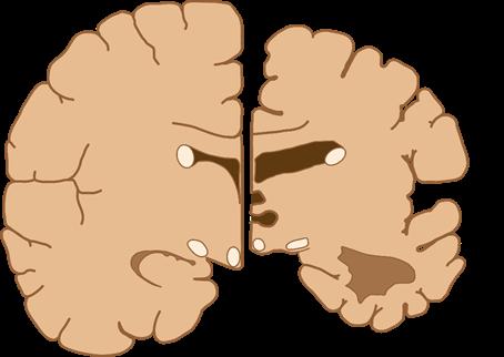 Alzheimer ¿Nuestras proteínas acumuladas?