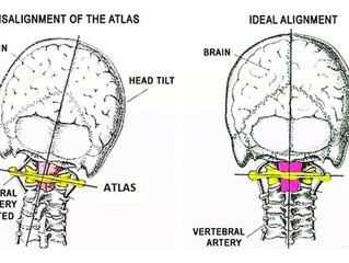 Does the Atlas Orthogonal Procedure Really Work?