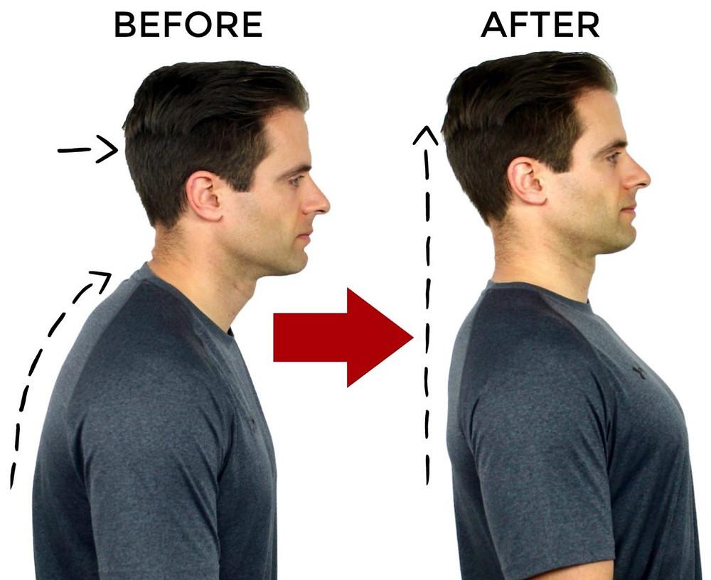 Posture Correction Chiropractor