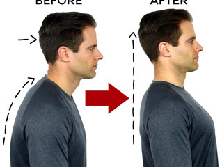Posture Correction With Chiropractic Care