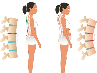 Fixing a Hunchback with Chiropractic Care