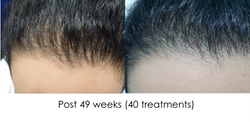 Hair regrowth DS