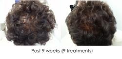 Hair regrowth KB