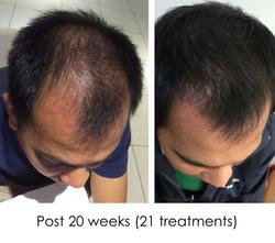 Hair regrowth PD