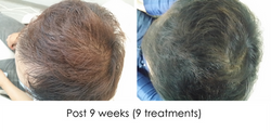 Hair regrowth WS