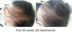 Hair regrowth HS