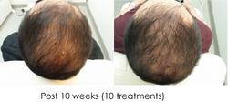 Hair regrowth WL