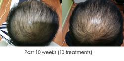 Hair regrowth EC