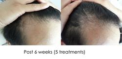 Hair regrowth TL